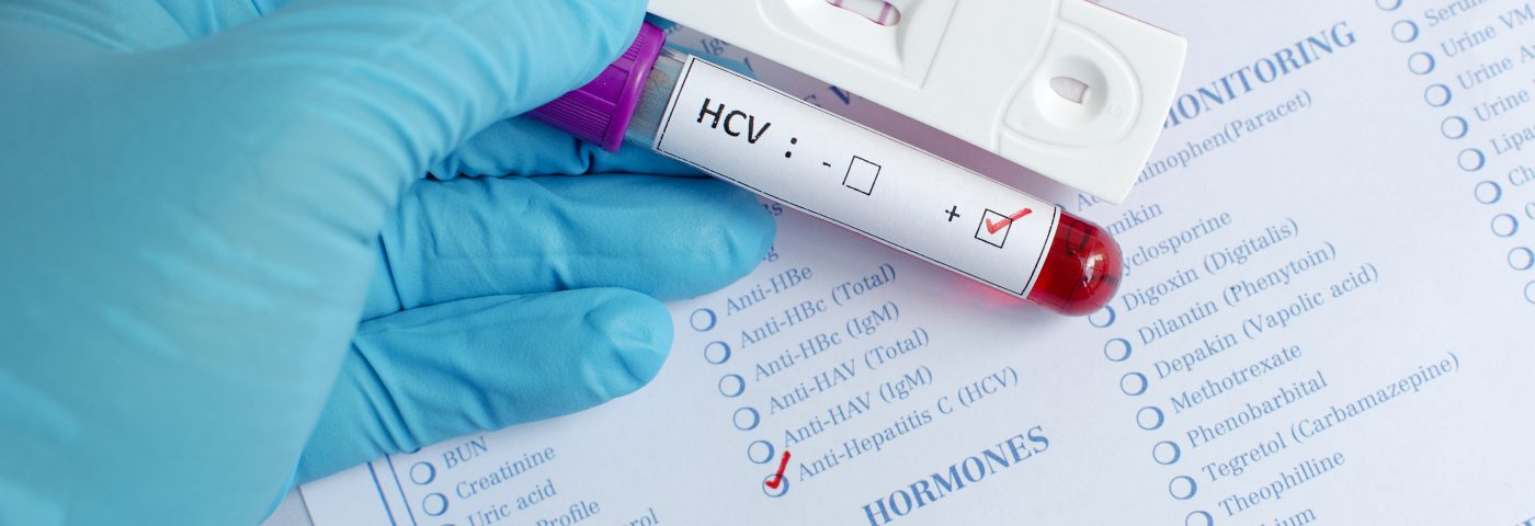 Promising Phase 1 Data Reported for Chronic Hepatitis C Investigational Therapy